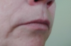Picture of right side of face before treatment